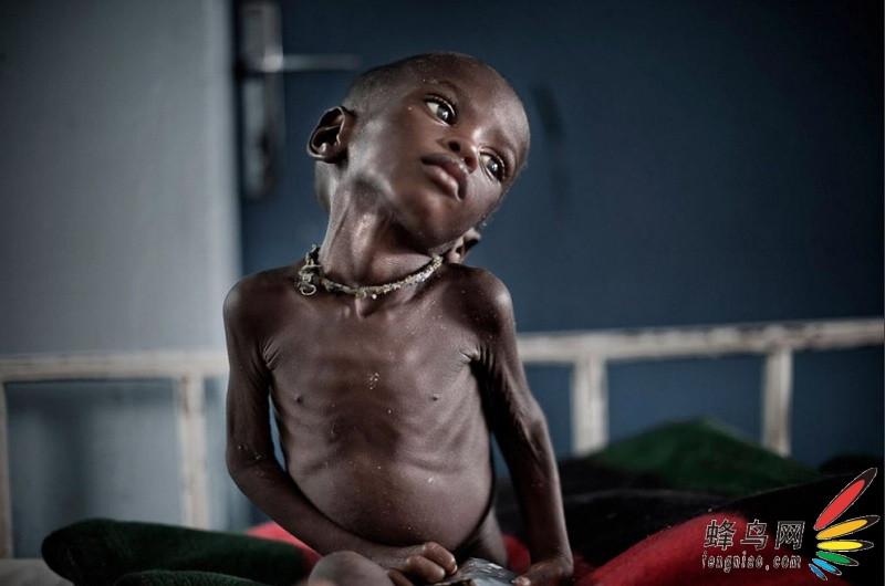 【饥荒图】高清:尼日利亚大纪实图纸图纸a2比例a1图片与图片